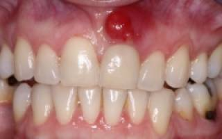Свищ на десне у ребенка после лечения зуба