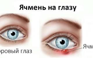 Ячмень на глазу у ребенка 2 года лечение