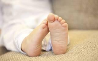Грибок на ногах у ребенка 3 года лечение