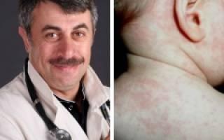 Герпес на губе у ребенка 3 года лечение комаровский