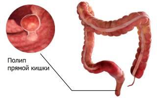 Полипы в кишечнике у ребенка симптомы и лечение