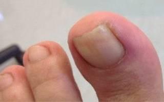Воспалился валик на большом пальце ноги у ребенка лечение