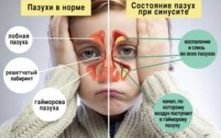 Чихание и насморк без температуры у ребенка лечение