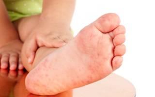Зуд на ладонях и ступнях у ребенка лечение