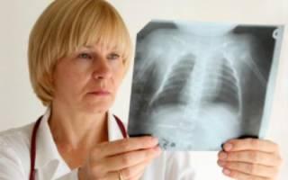 Воспаление легких у ребенка 3 года симптомы и лечение