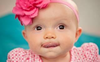 Как проверить уздечку под языком у ребенка?