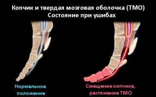 Ушиб копчика при падении у ребенка лечение что делать