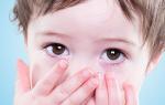 Надуло ветром глаза лечение у ребенка 3 года