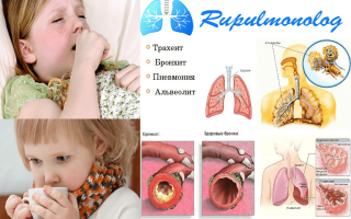 Кашель у ребенка горловой со свистом без температуры лечение