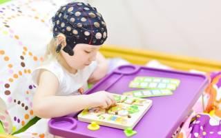 Эпиактивность на ээг у ребенка без приступов лечение