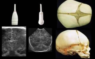 Расширенные сосуды головного мозга у грудного ребенка лечение