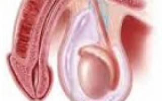 Водянка яичка у ребенка причины появления и лечение