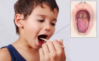 Грибок в горле у ребенка лечение народными средствами