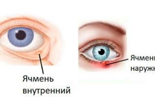 Лечение ячменя на глазу у ребенка народными средствами