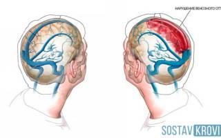 Затруднен отток венозной крови из головы у ребенка лечение