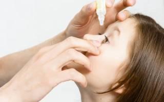 Вирусный конъюнктивит у ребенка лечение в домашних условиях