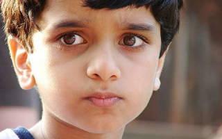 Темные круги под глазами у ребенка причины и лечение