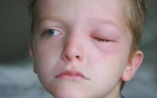 Припухлость верхнего века глаза у ребенка причины и лечение