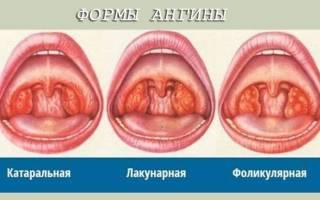 2 года ребенок ангина лечение в домашних условиях быстро
