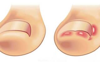 Вросший ноготь на большом пальце у ребенка лечение народными средствами