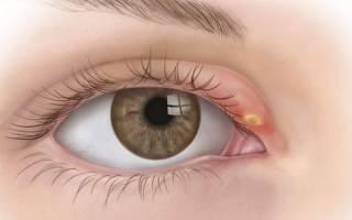 Холодный ячмень на глазу лечение у ребенка народными средствами
