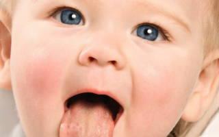 Стоматит у ребенка лечение в домашних условиях 4 месяца