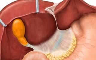Изогнутый желчный пузырь у ребенка симптомы и лечение