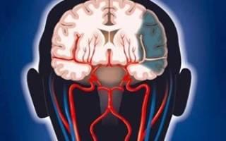 Нарушен венозный отток головного мозга у ребенка лечение