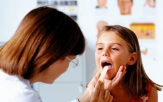 Стрептококк и стафилококк у ребенка в горле лечение
