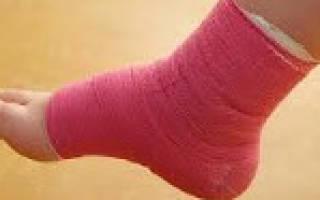 Артрит голеностопного сустава симптомы и лечение у ребенка