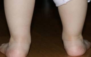 Натоптыши на ступнях у ребенка 8 лет лечение
