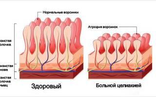 Что такое целиакия? Причины заболевания у детей