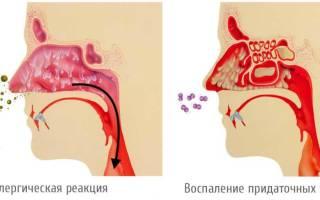 Сопли по задней стенке у ребенка лечение 4 года