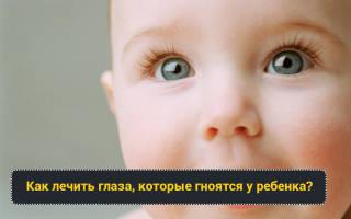 Температура и гноятся глаза у ребенка причины и лечение
