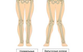 Иксообразные ноги у ребенка лечение в 2 года